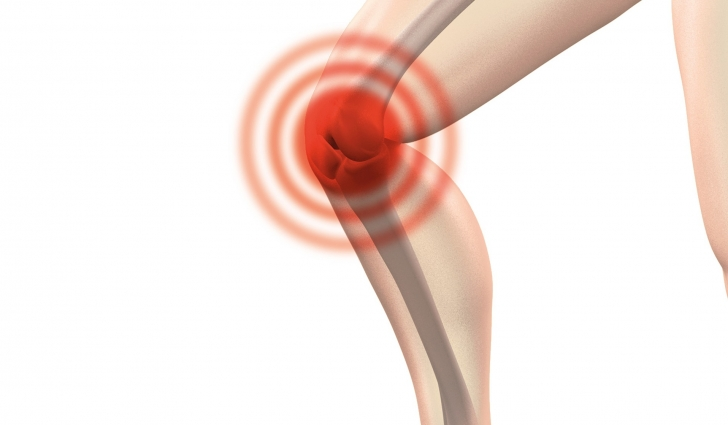 patellofemoral pain knee cap physiotherapy newcastle nsw