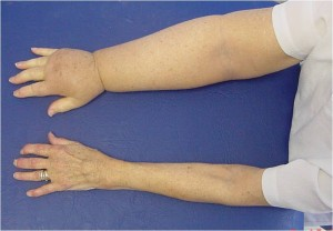 Lymphoedema physiotherapy recovery