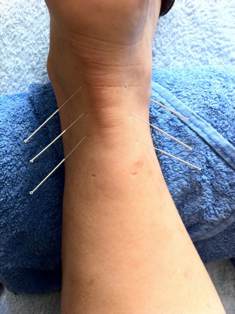 achilles tendinopathy dry needling physio treatment