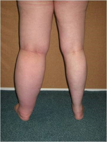 lymphoedema physio treatments