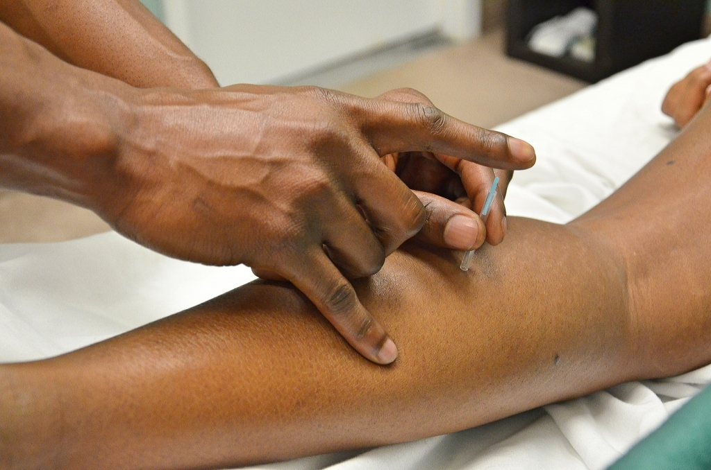 acupuncture trigger point dry needling
